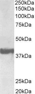 SH3GL2 Antibody (PA5-37886) in Western Blot