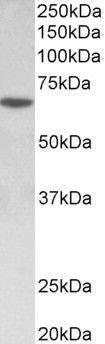 SOX11 Antibody (PA5-37891) in Western Blot