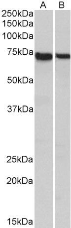 STXBP3 Antibody (PA5-37892) in Western Blot