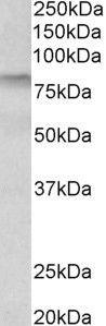 TGM3 Antibody (PA5-37896) in Western Blot