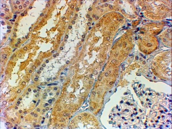 Tensin 1 Antibody (PA5-37900)