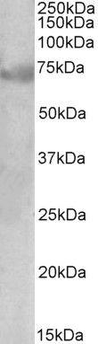 DMTF1 Isoform 1 Antibody (PA5-37916)