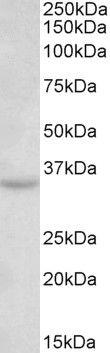TSPAN5 Antibody (PA5-37918) in Western Blot