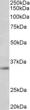 SPON2 Antibody (PA5-37919)
