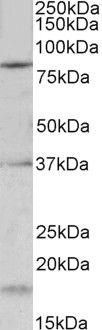 KCNC3 Antibody (PA5-37927) in Western Blot