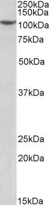 PRP6 Antibody (PA5-37936) in Western Blot