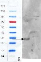 CD97 Antibody (PA5-37938)