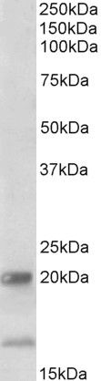 IL17B Antibody (PA5-37940) in Western Blot
