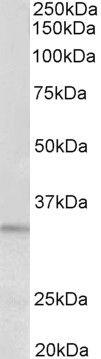 PI15 Antibody (PA5-37944) in Western Blot