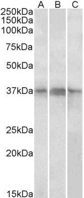 PHF11 Antibody (PA5-37945)