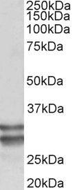 RFLAT-1 Antibody (PA5-37948) in Western Blot