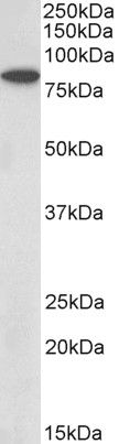 BBS7 Antibody (PA5-37952) in Western Blot