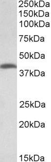 THNSL2 Antibody (PA5-37954) in Western Blot