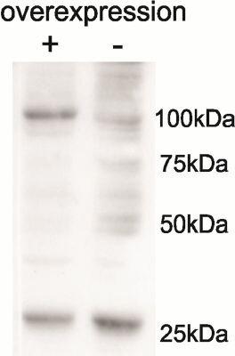 AARS2 Antibody (PA5-37957) in Western Blot