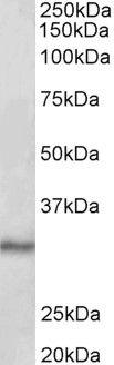 CTDSP1 Antibody (PA5-37961) in Western Blot