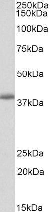PDLIM2 Antibody (PA5-37962)