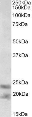 IL-25 Antibody (PA5-37967) in Western Blot