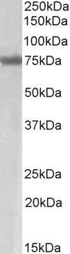 Axotrophin Antibody (PA5-37969) in Western Blot