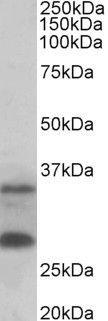 USB1 Antibody (PA5-37975) in Western Blot