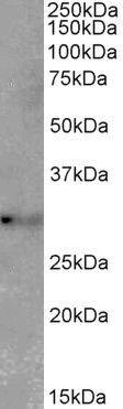 TSPAN14 Antibody (PA5-37979)