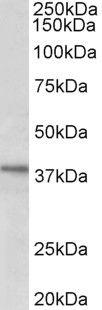 C12orf29 Antibody (PA5-37983) in Western Blot