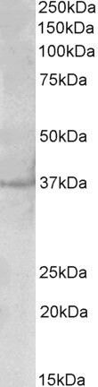PLK5 Antibody (PA5-37987) in Western Blot