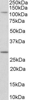 MYO1H Antibody (PA5-37996) in Western Blot