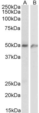 ECSCR Antibody (PA5-38003) in Western Blot