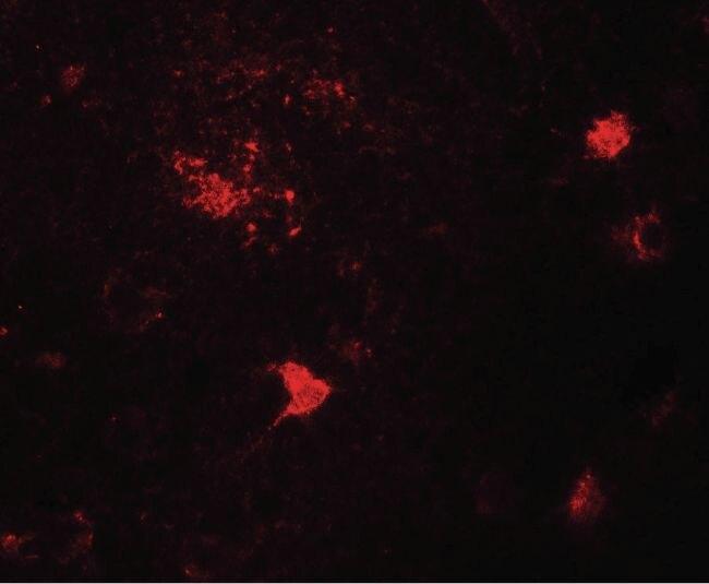 DPF3 Antibody (PA5-38011) in Immunofluorescence
