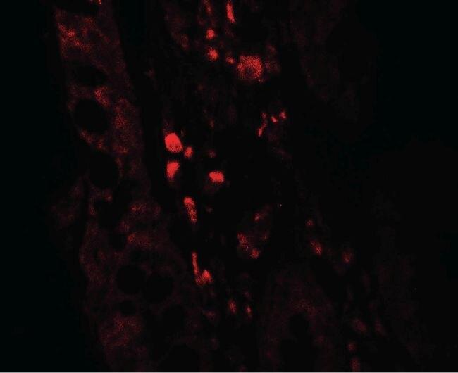 GLIPR1 Antibody (PA5-38023) in Immunofluorescence