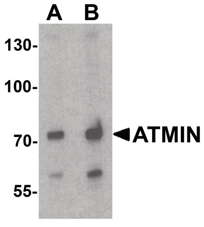 ATMIN Antibody (PA5-38025) in Western Blot