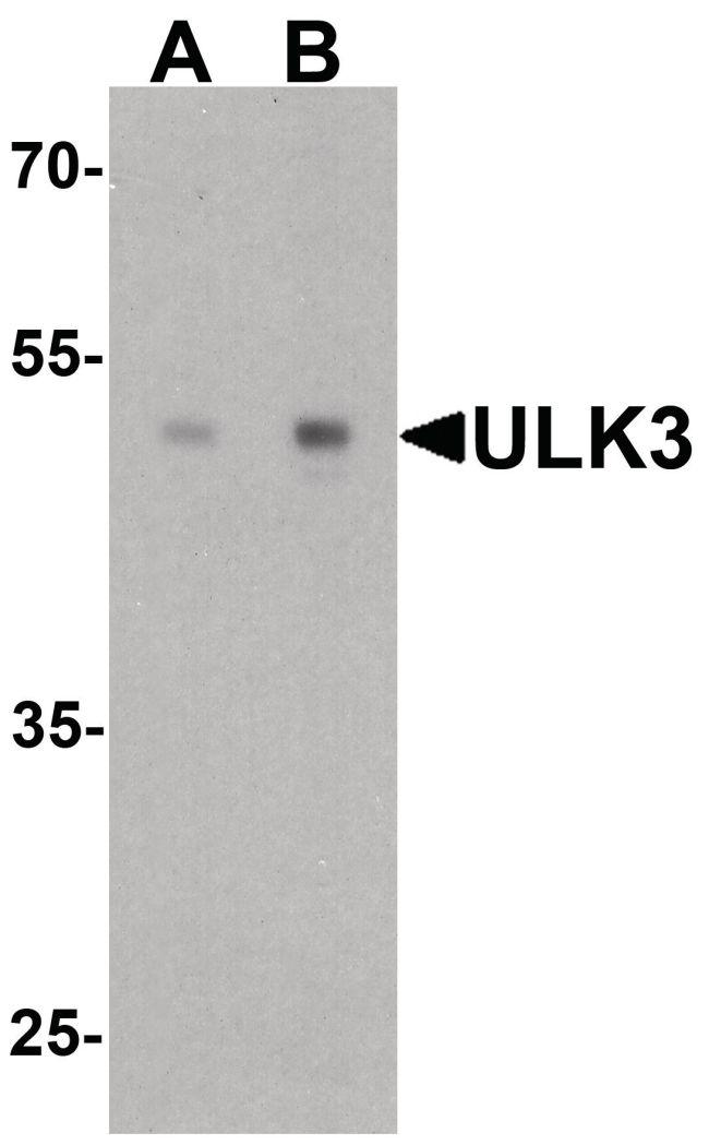 ULK3 Antibody (PA5-38030) in Western Blot