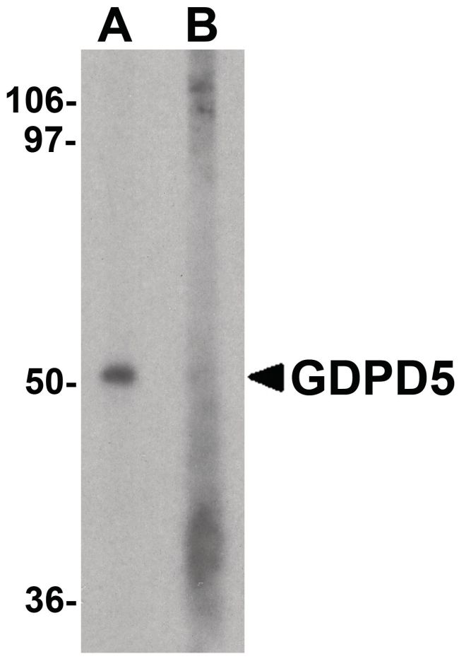GDPD5 Antibody (PA5-38048) in Western Blot