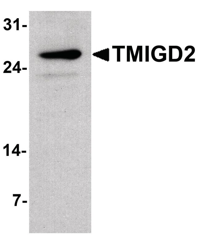 TMIGD2 Antibody (PA5-38055) in Western Blot