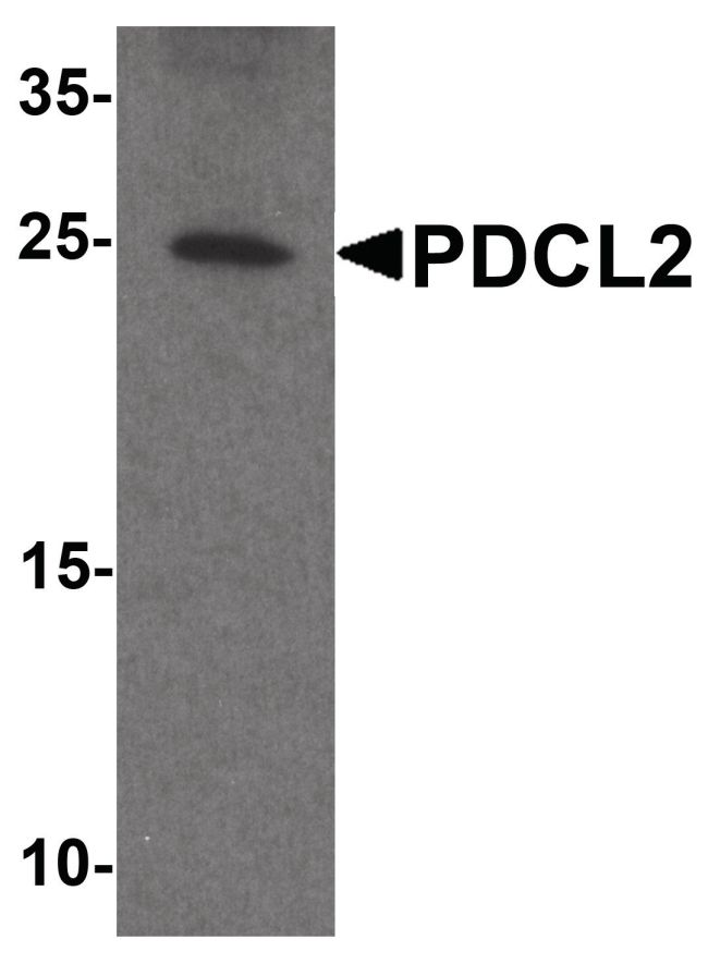 PDCL2 Antibody (PA5-38056) in Western Blot