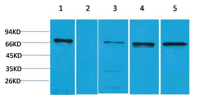 ZBTB45 Antibody (PA5-38063)