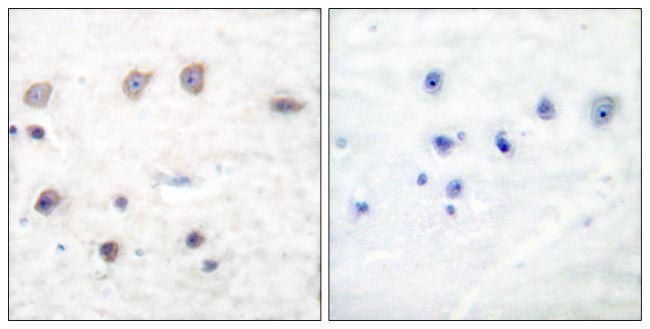Phospho-alpha Adducin (Ser726) Antibody (PA5-38064) in Immunohistochemistry (Paraffin)