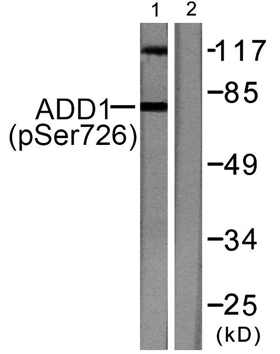 Phospho-alpha Adducin (Ser726) Antibody (PA5-38064) in Western Blot