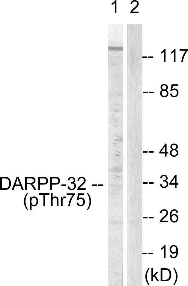 Phospho-DARPP-32 (Thr75) Antibody (PA5-38065) in Western Blot