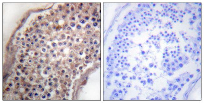 Ephrin B1/B3 Antibody (PA5-38067) in Immunohistochemistry (Paraffin)