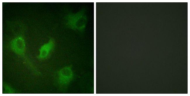 IkB epsilon Antibody (PA5-38071)