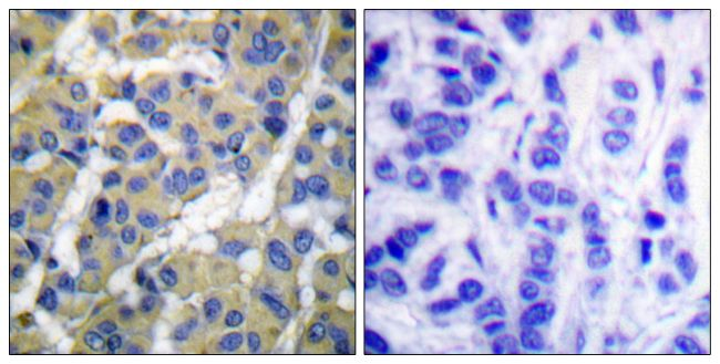 Phospho-Cytokeratin 8 (Ser73) Antibody (PA5-38072) in Immunohistochemistry (Paraffin)