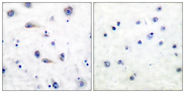 Phospho-TrkB (Tyr515) Antibody (PA5-38076)