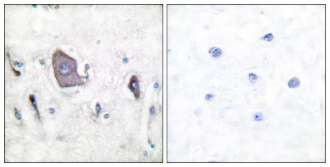 Phospho-TrkB (Tyr705) Antibody (PA5-38077) in Immunohistochemistry (Paraffin)