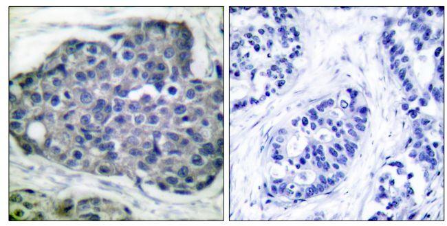 Phospho-Acetyl-CoA Carboxylase (Ser80) Antibody (PA5-38079) in Immunohistochemistry (Paraffin)