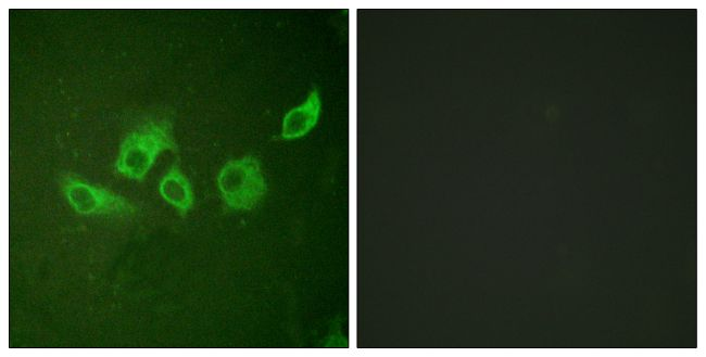 Phospho-Crk (Tyr221) Antibody (PA5-38083)