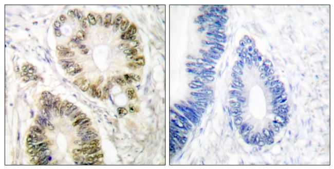 Phospho-Cyclin E (Thr395) Antibody (PA5-38084) in Immunohistochemistry (Paraffin)