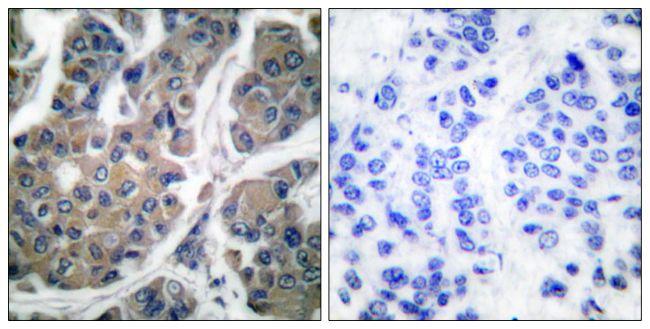Phospho-EEF2 (Thr56) Antibody (PA5-38085) in Immunohistochemistry (Paraffin)