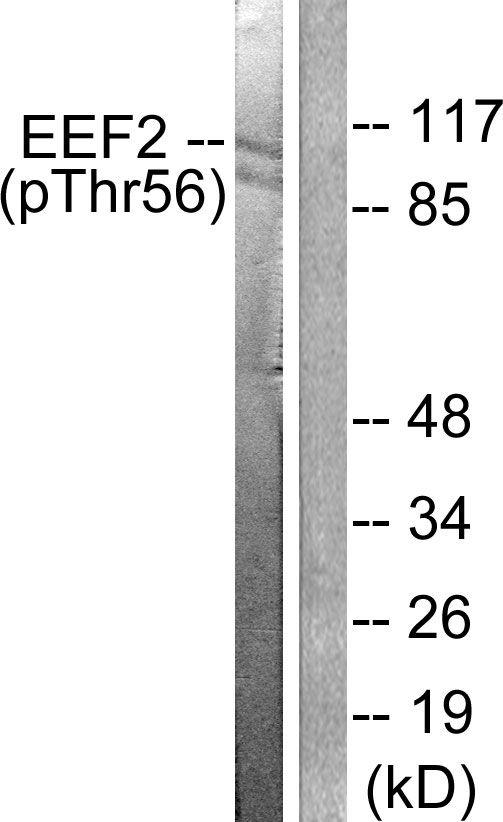 Phospho-EEF2 (Thr56) Antibody (PA5-38085) in Western Blot