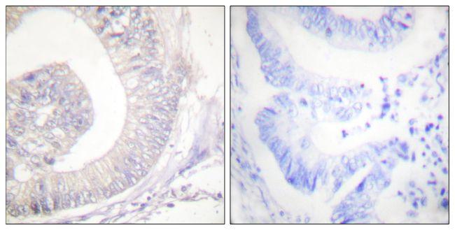 Phospho-HSL (Ser554, Ser855) Antibody (PA5-38087) in Immunohistochemistry (Paraffin)